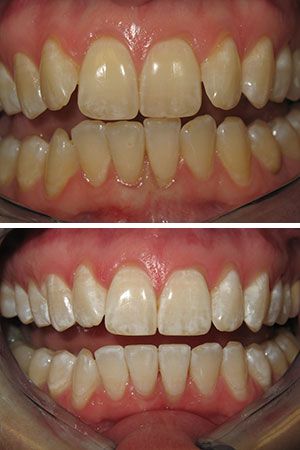 Clear Image Aligners and Zoom! Whitening